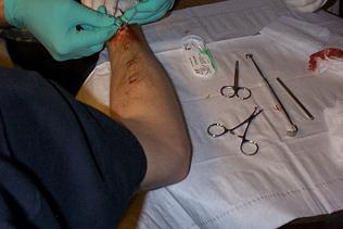 transdermal implants